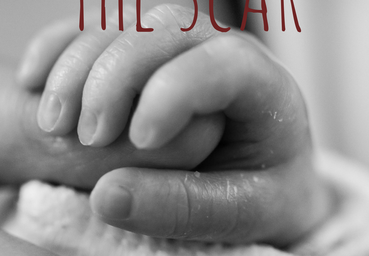 The Truth Behind the Scar: A Story of TwoC-sections